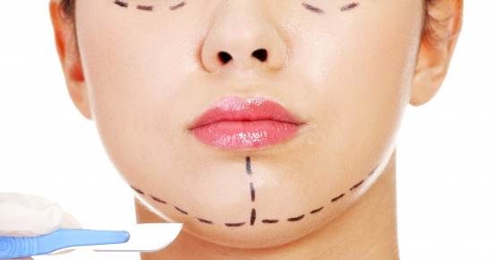Face Lift - Rejuvenescimento Facial
