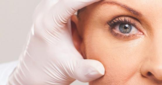 Blefaroplastia | Cirurgia das Pálpebras