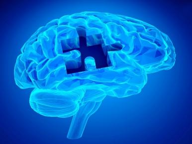 O que faz bem para o seu coração também é bom para o seu cérebro