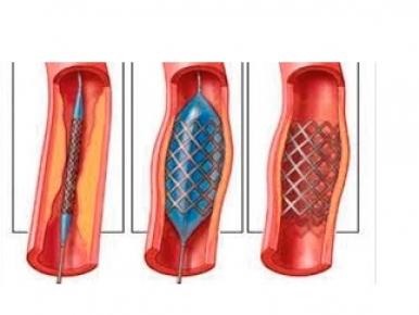 Cirurgia Vascular e seus avanços